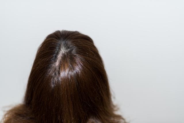 葉酸と育毛の関係