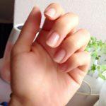 爪を見れば健康状態が分かる?爪が割れやすいのは葉酸不足だった?